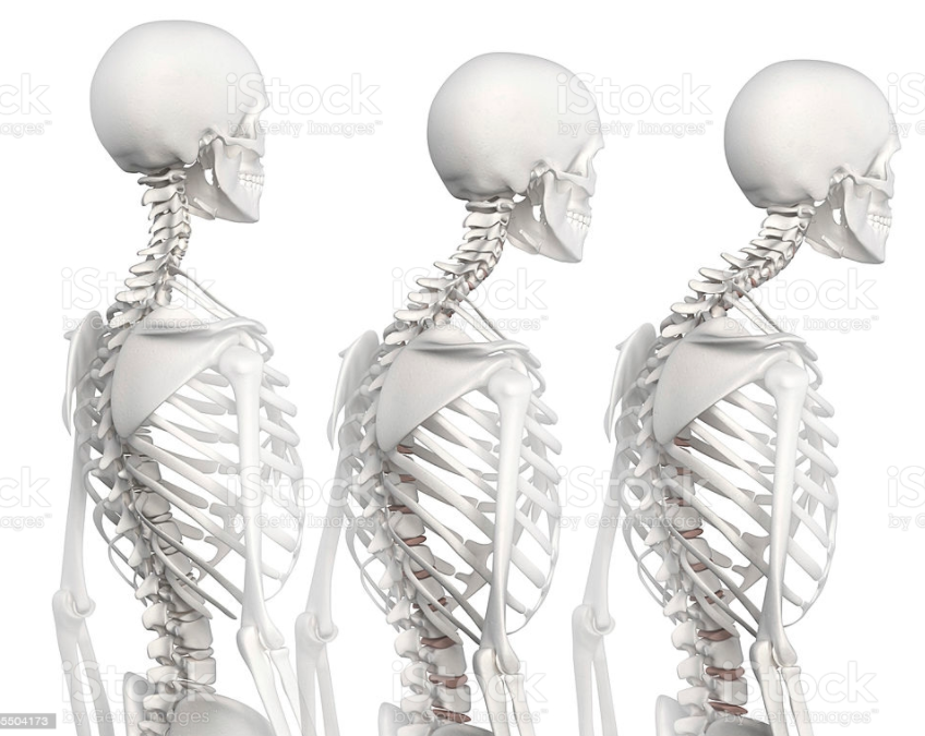Ipercifosi: Descrizione, posture ed esercizi